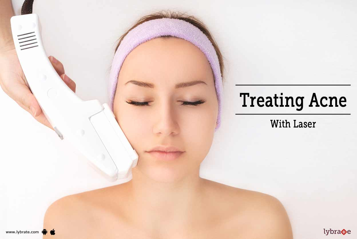 Benefits of photofacial treatments