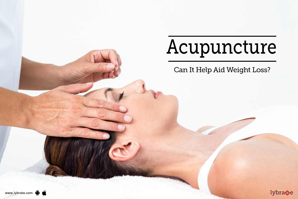 acupuncture - can it help aid weight loss? - by dr. healer nazir