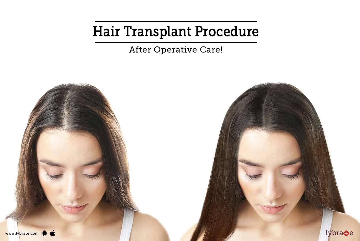 Hair Transplant Procedure After Operative Care By Dr Shricharith Shetty Lybrate