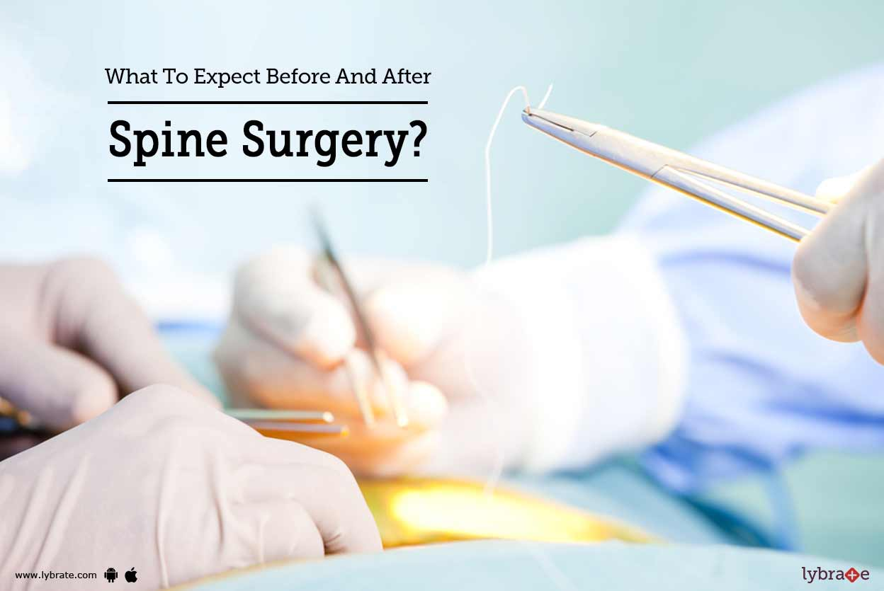 larry manetti stroke surgery recovery - HD1248×835