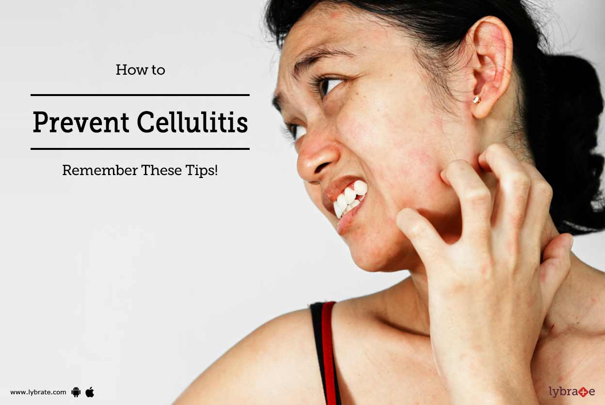 Right facial cellulitis useful