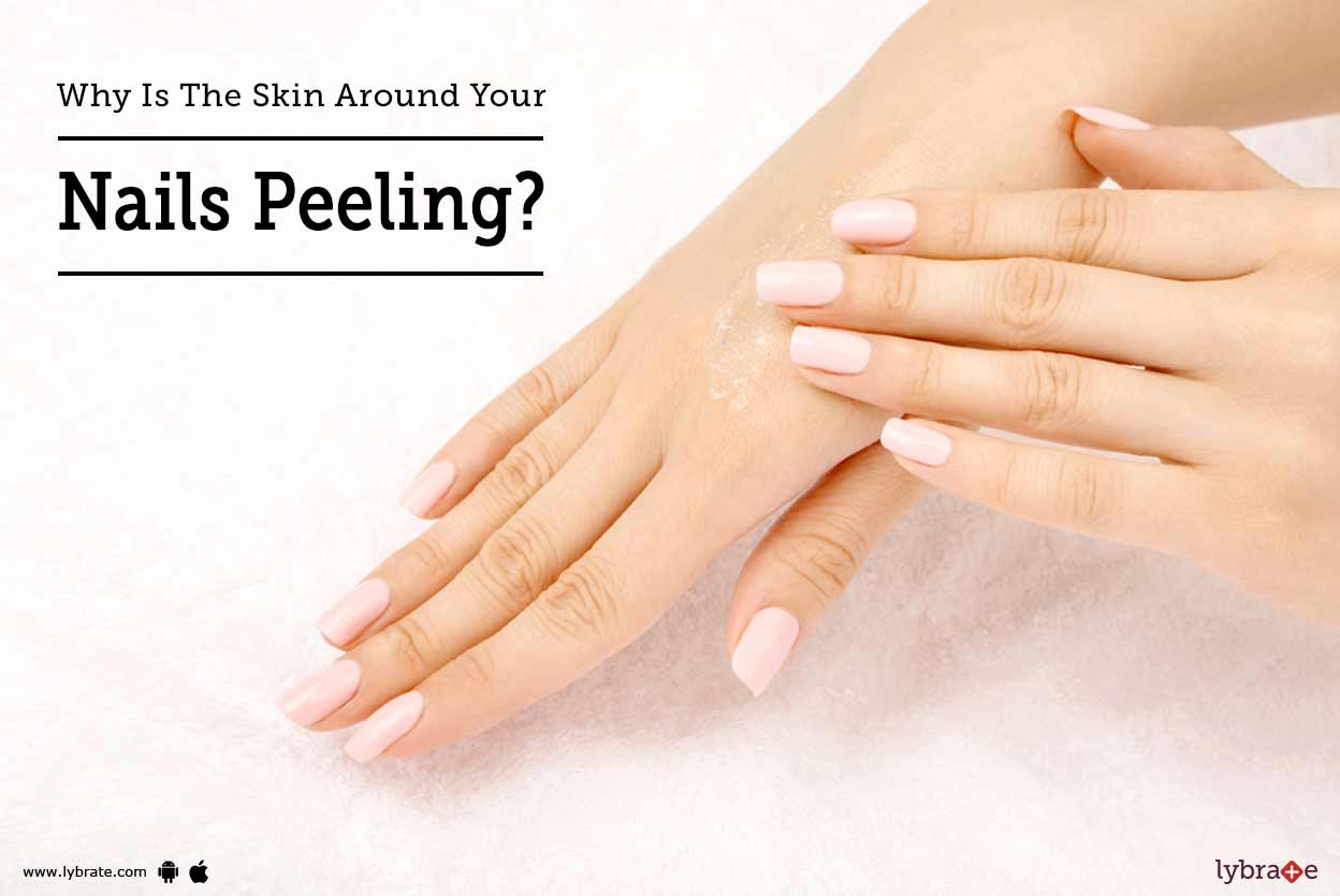 Why Is The Skin Around Your Nails Peeling