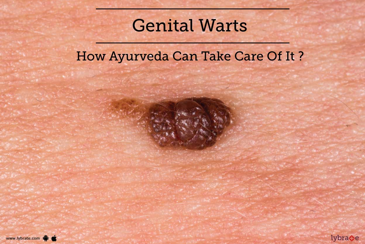 Genital Warts Tips & Advice From Top Doctors | Lybrate