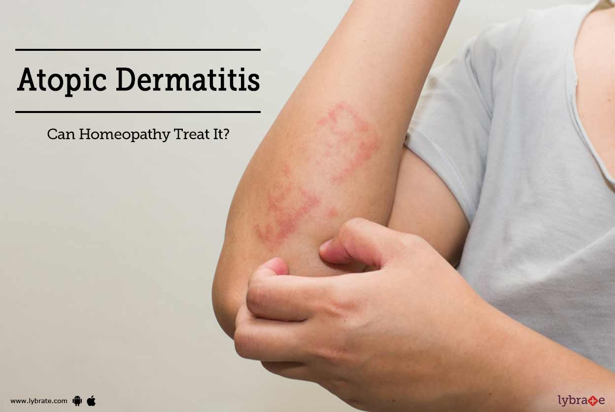 Than to treat a dermatitis