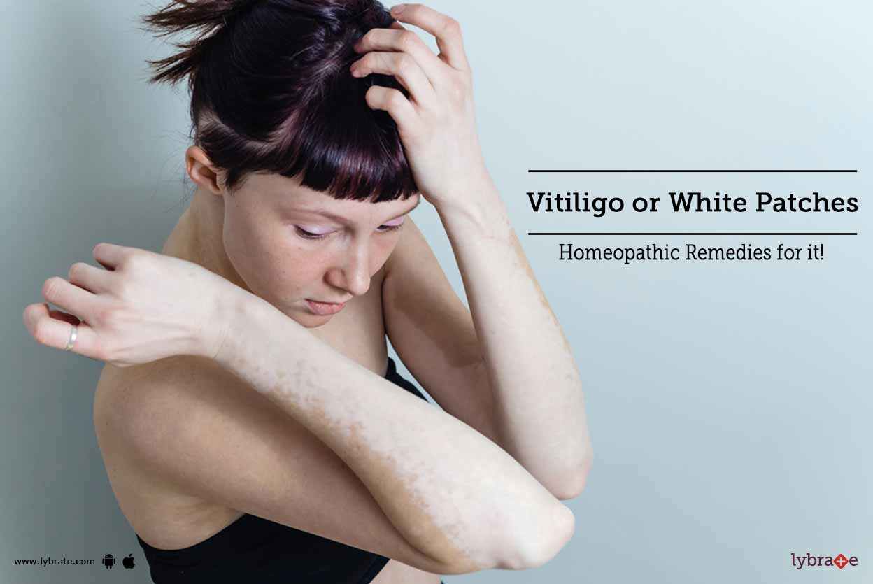 Homeopathic Medicine For Vitiligo Or White Patches Treatment By Dr Jeevan Kopparad Lybrate