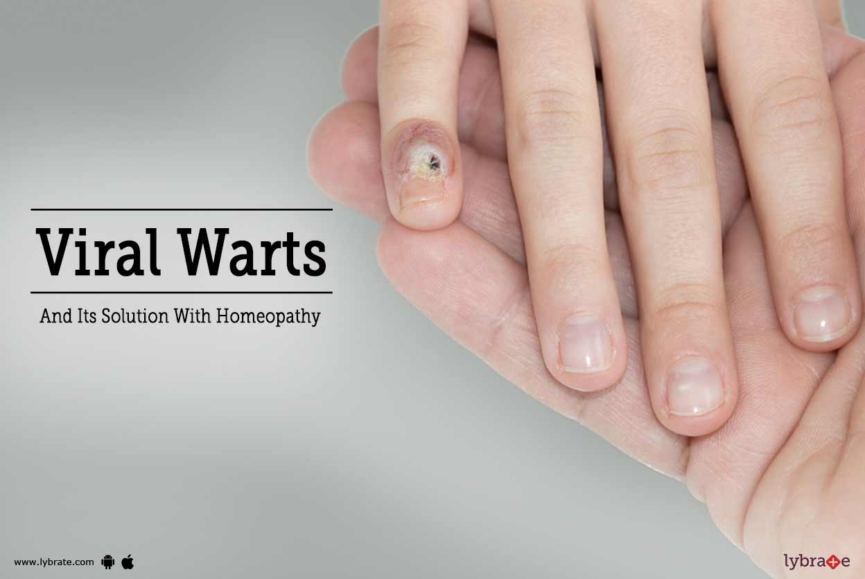 Flat wart: treatment at home and in the hospital