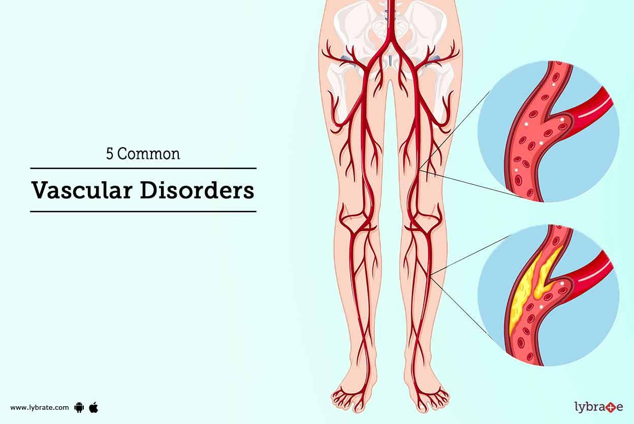 5 Common Vascular Disorders - By Dr. Himanshu Verma | Lybrate