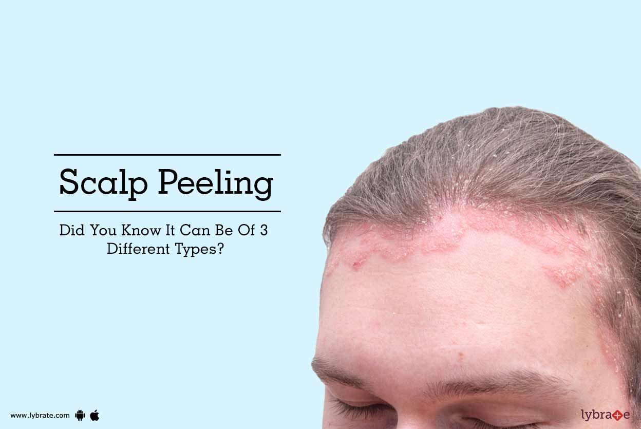 Scalp Peeling - Did You Know It Can Be Of 3 Different -9640