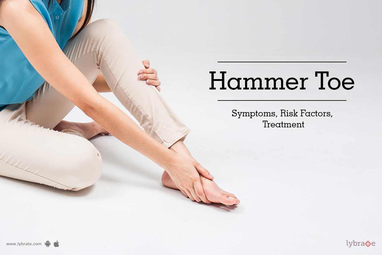 hammer toes symptoms - HD1248×835