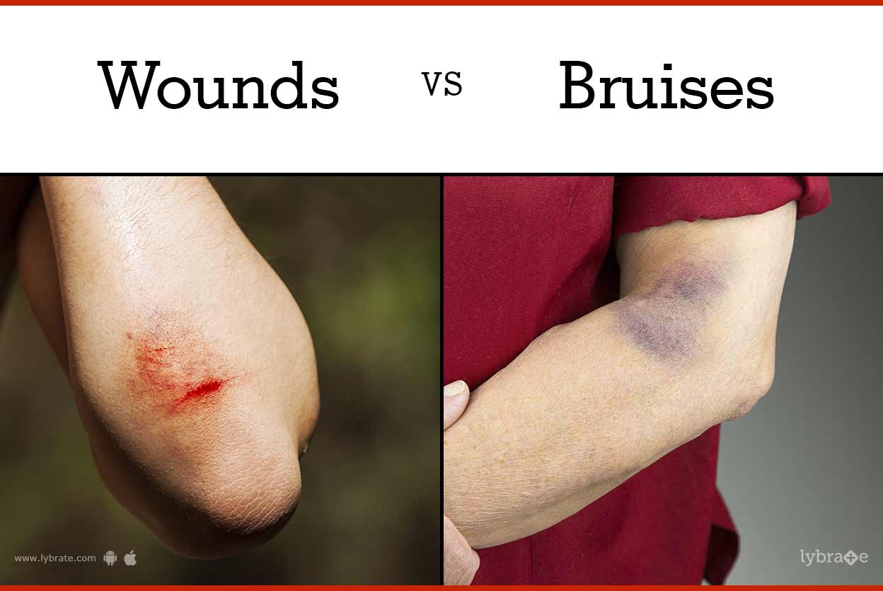 First aid for bruises, abrasions and cuts