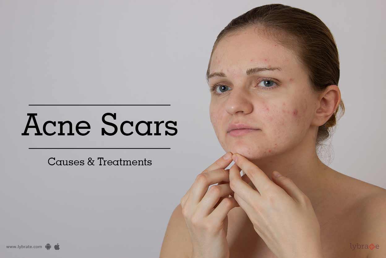 What dreams acne Crush acne in a dream. Interpretation of dreams 72