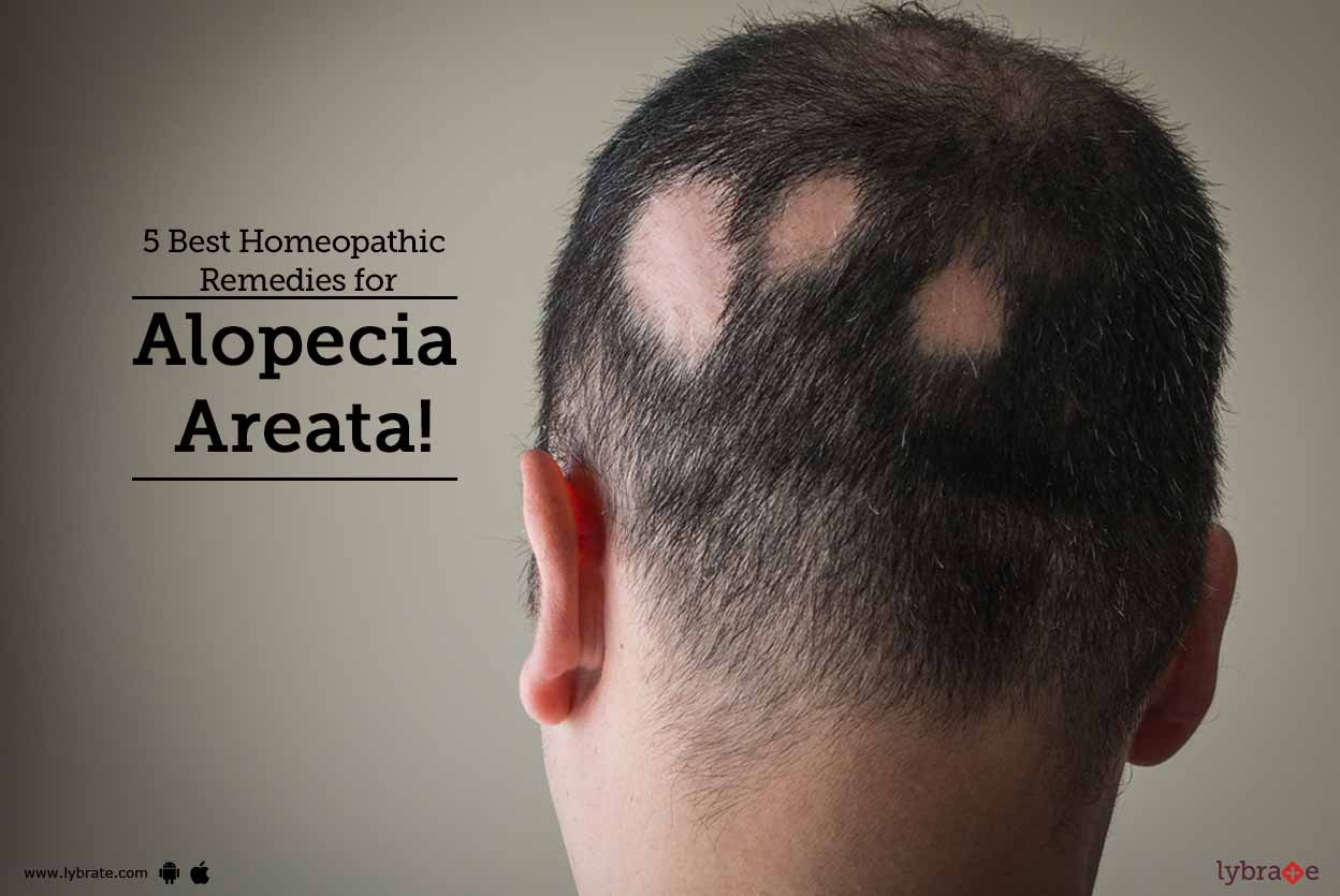 5 Best Homeopathic Remedies For Alopecia Areata By Dr Rajesh Dungrani Lybrate