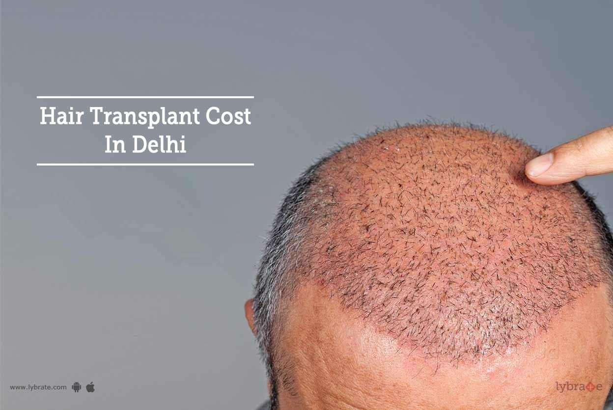 Hair Transplant Cost In Delhi By Dr Sanjeev Kumar Singh Lybrate