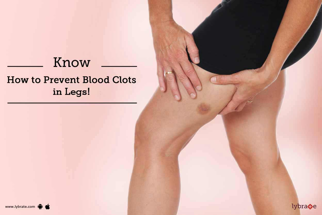How to Clear Blood Clots Naturally (with)