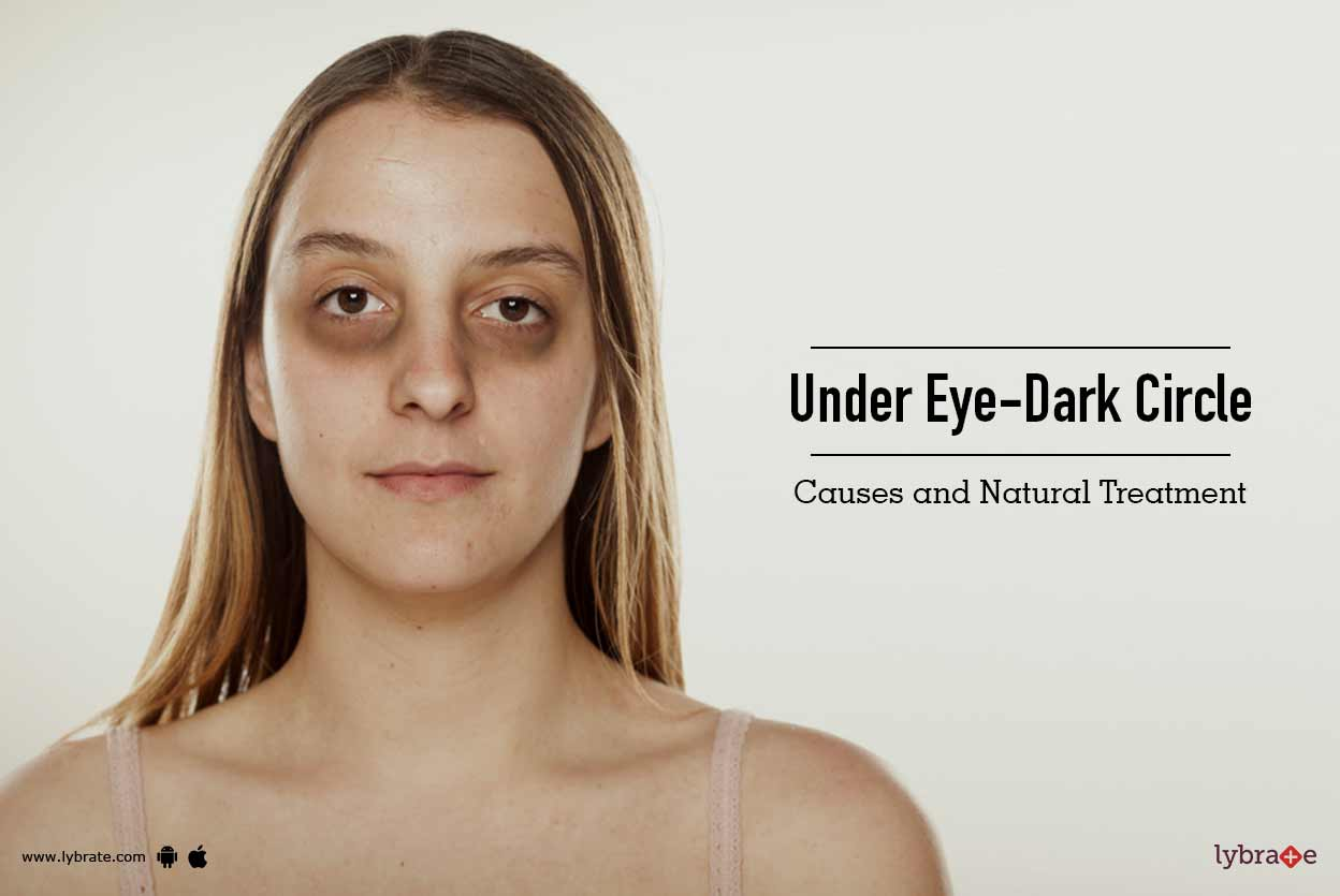 Under Eye-Dark Circle: Causes and Natural Treatment - By ...
