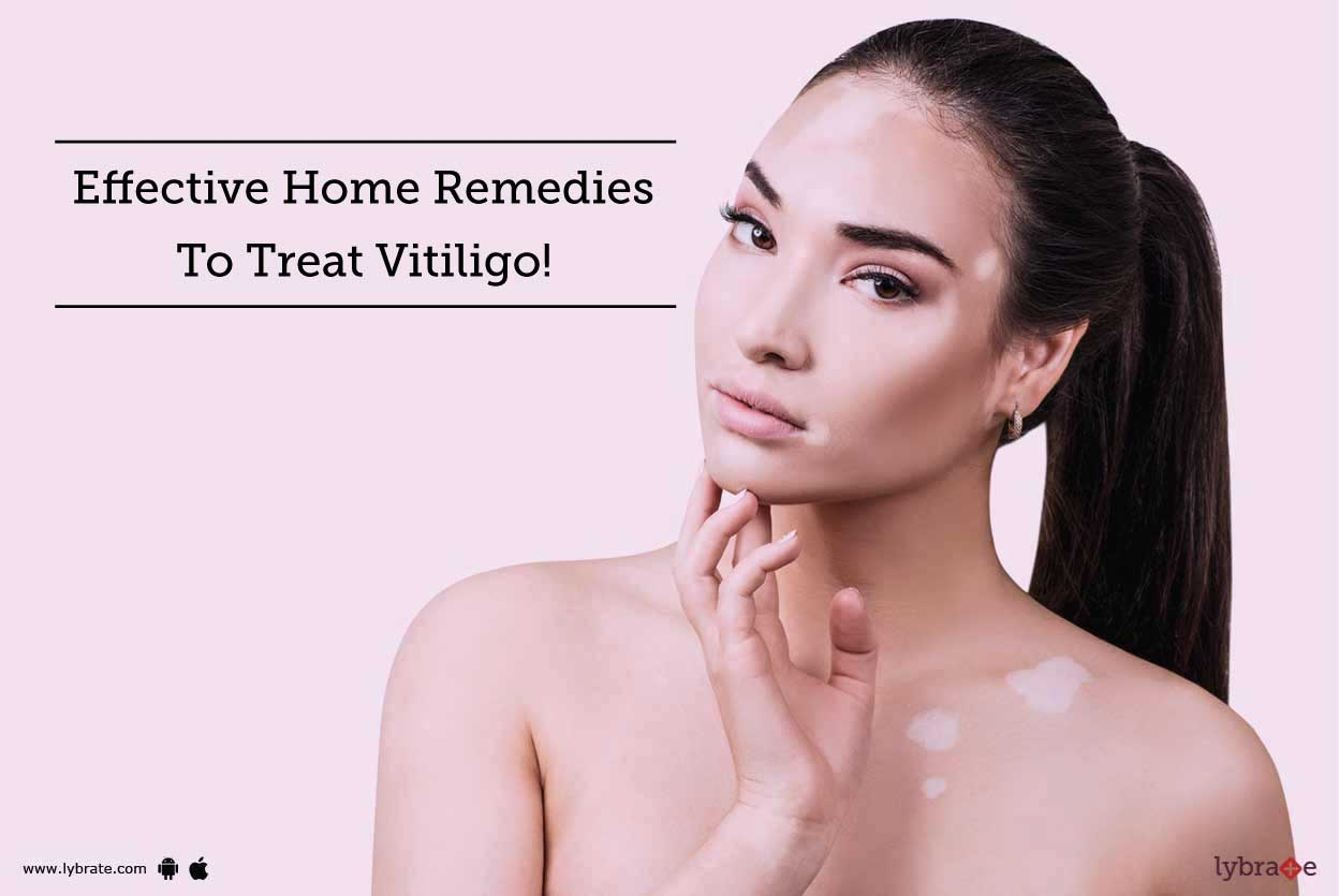5 Best Home Remedies To Treat Vitiligo Diseases By Dr Ravish Kamal Lybrate