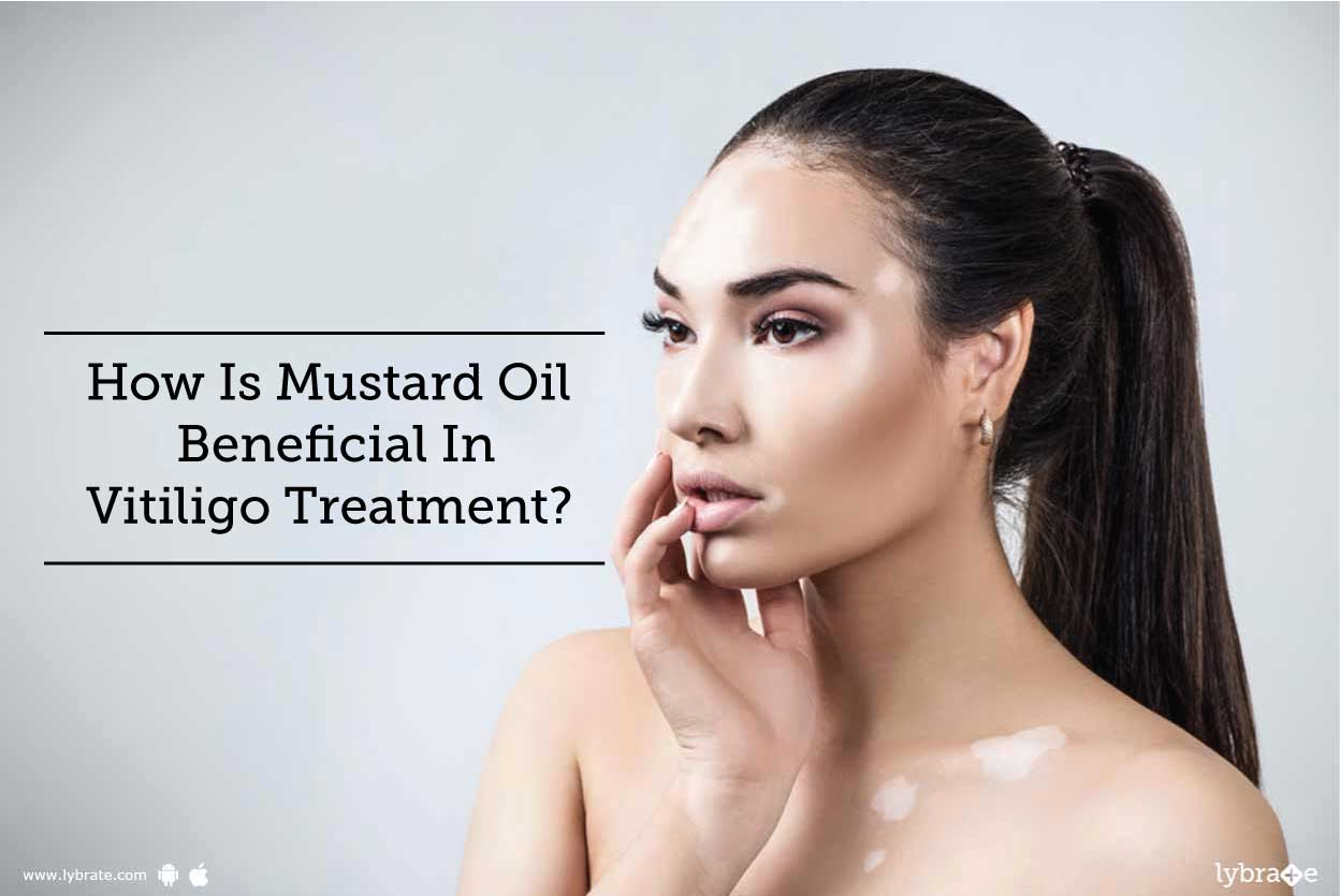 How Is Mustard Oil Beneficial In Vitiligo Treatment By Dr Ravish Kamal Lybrate