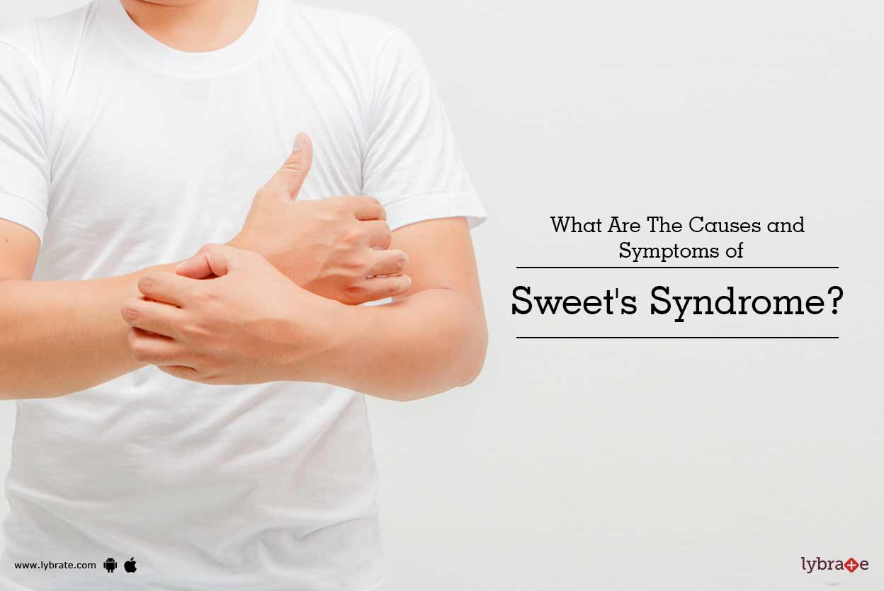 What is the cause of a sweet allergy 96