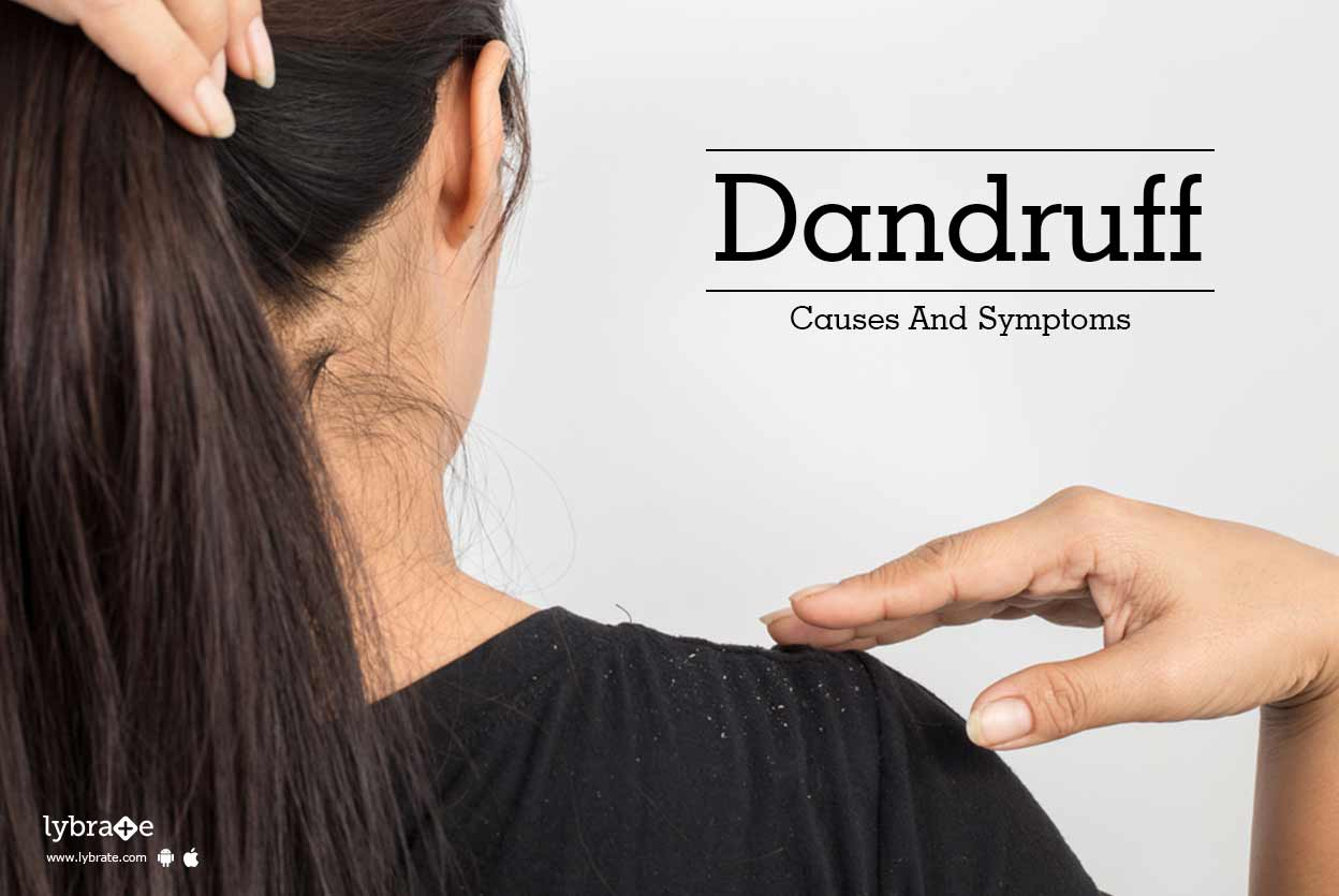 Anti dandruff treatment in bangalore dating