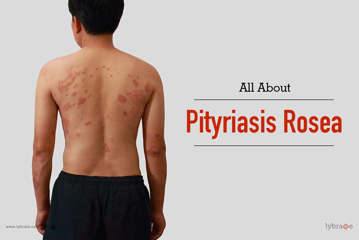 All About Pityriasis Rosea - By Dr. P. Phanisri | Lybrate