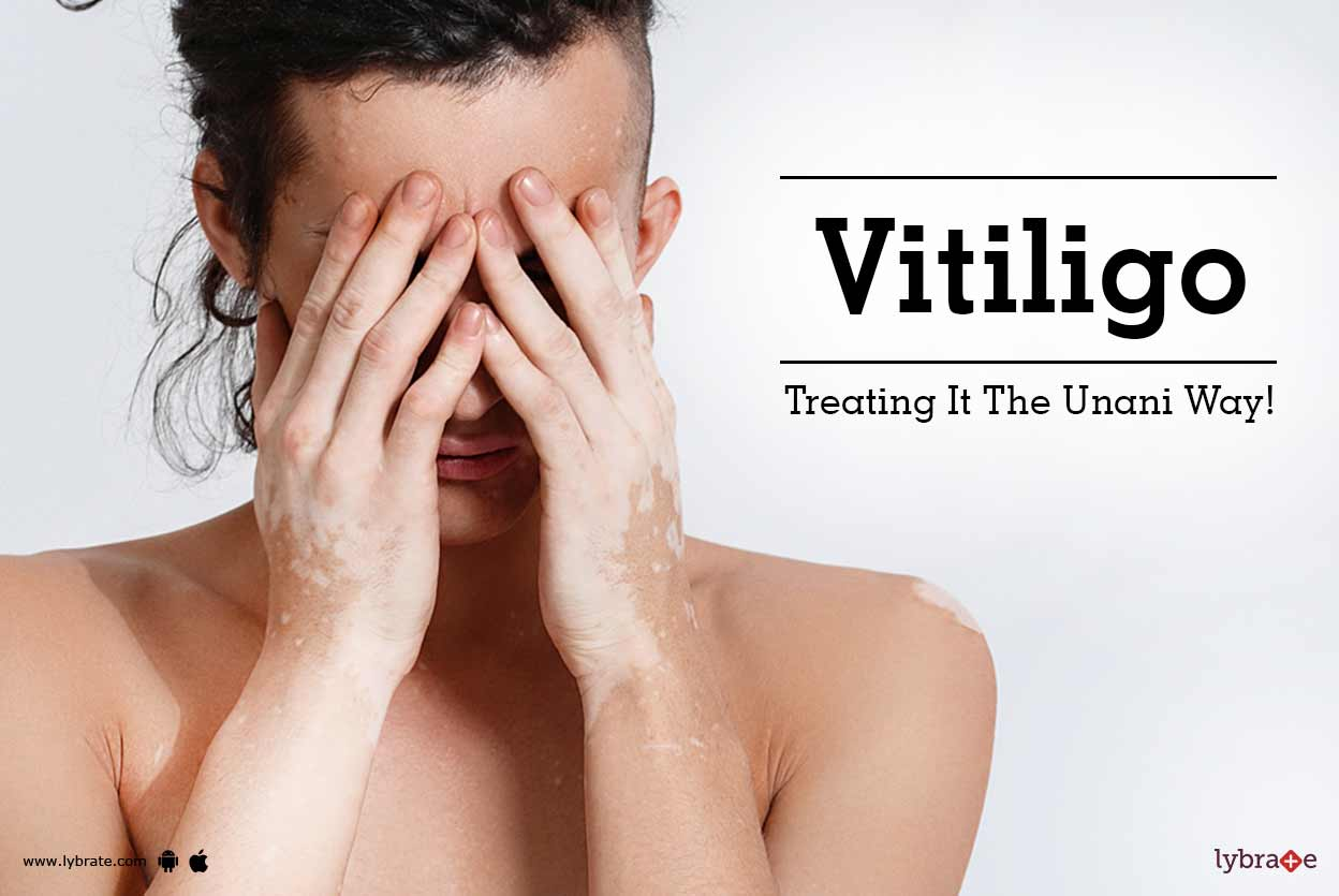 Best Unani Medicine For Vitiligo Treatment By The Herbals Lybrate