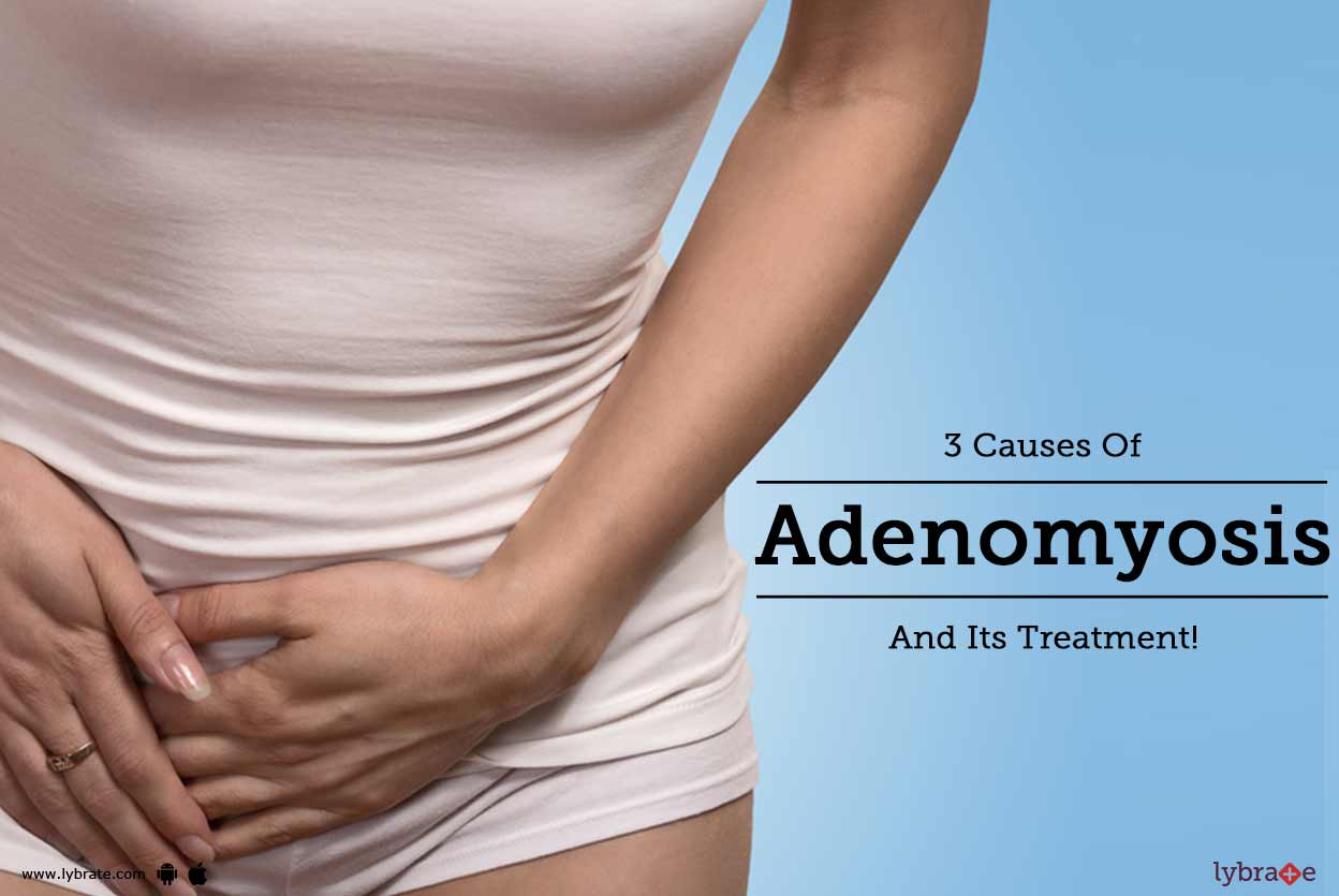 3 Causes Of Adenomyosis And Its Treatment! - By Dr. Seema ...