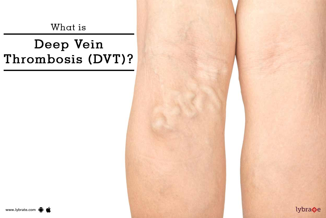 What is Deep Vein Thrombosis (DVT) - Symptoms,Treatment & Prevention - By  Dr. Rajendra Bansal | Lybrate