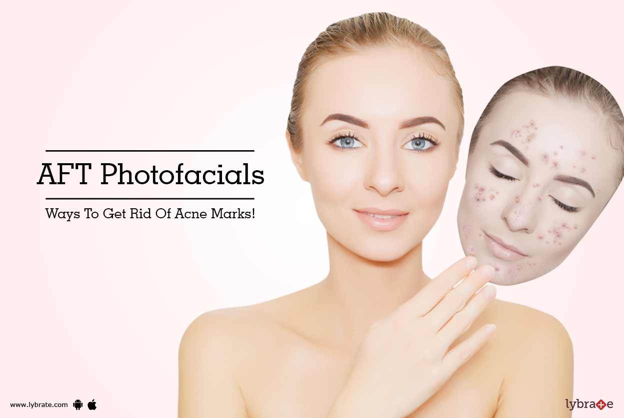 Kaya Skin Clinic - Phoenix MarketCity Health Feed - Tips, Question and  Answer on Dermatologist Clinic   Lybrate