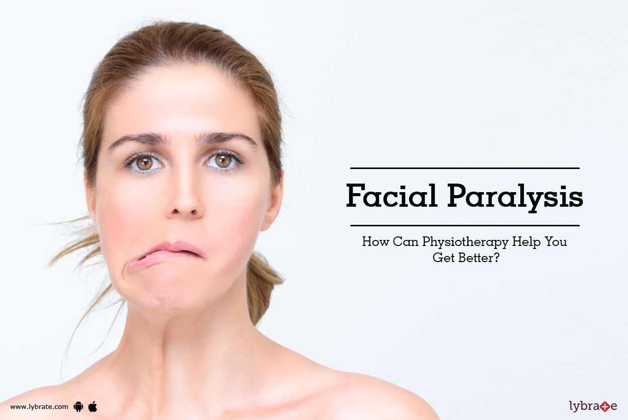 Peripheral facial nerve palsy — photo 6