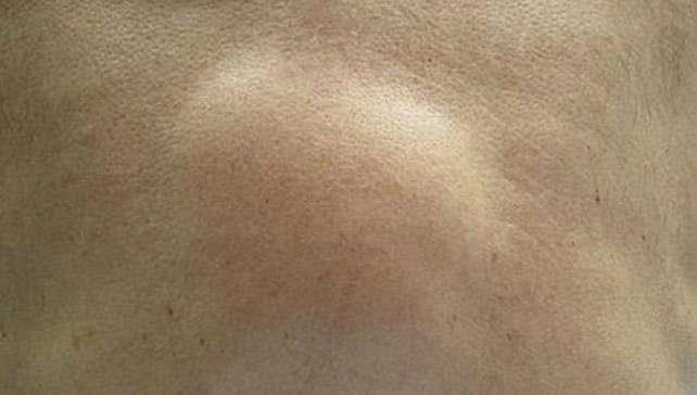 Lipoma - Its Treatment With Homeopathy! - By Dr  Swarup
