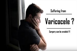 Varicocele: common myths debunked.
