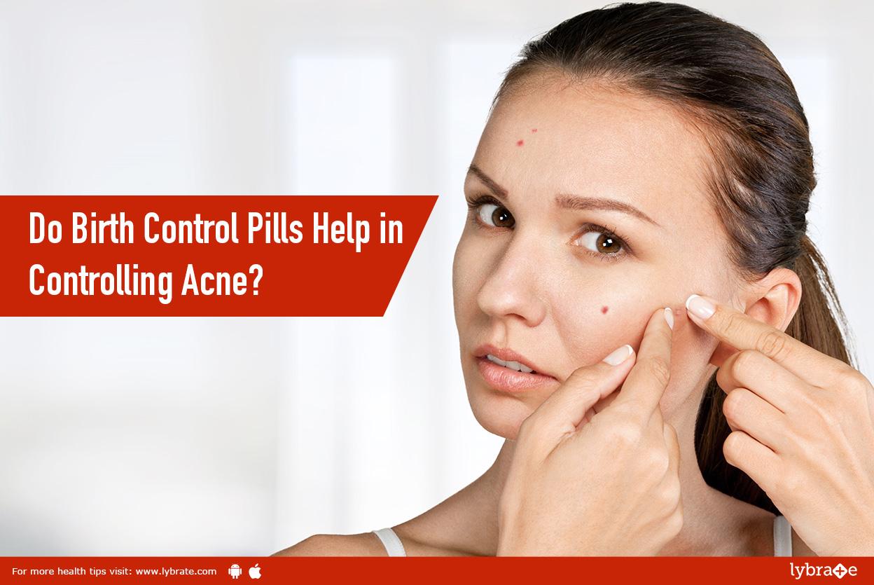 do birth control pills help in controlling acne? - by dr. hardik