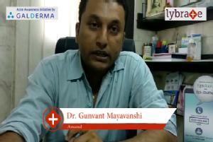 Lybrate   Dr. Gunvant mayavanshi speaks on importance of treating acne early