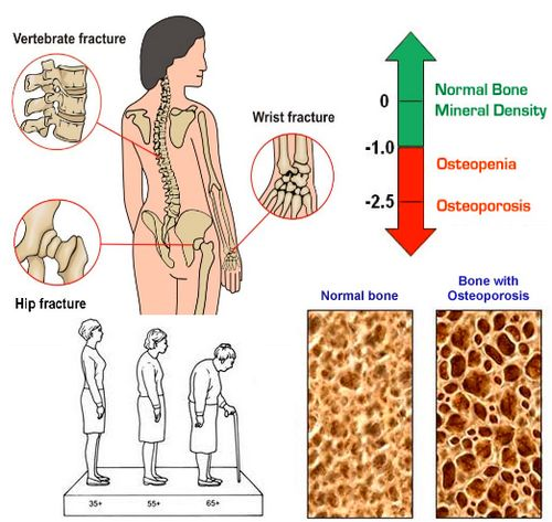 Osteoporosis and Exercises - By Dr. Vipsa Gupta | Lybrate