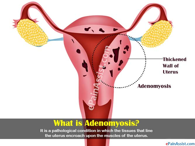 Adenomyosis Tips & Advice From Top Doctors | Lybrate