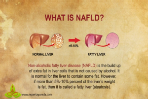 Nafld - non-alcoholic fatty liver disease.