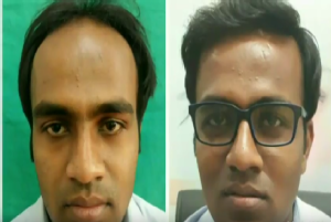 Follicular unit extraction hair transplant.
