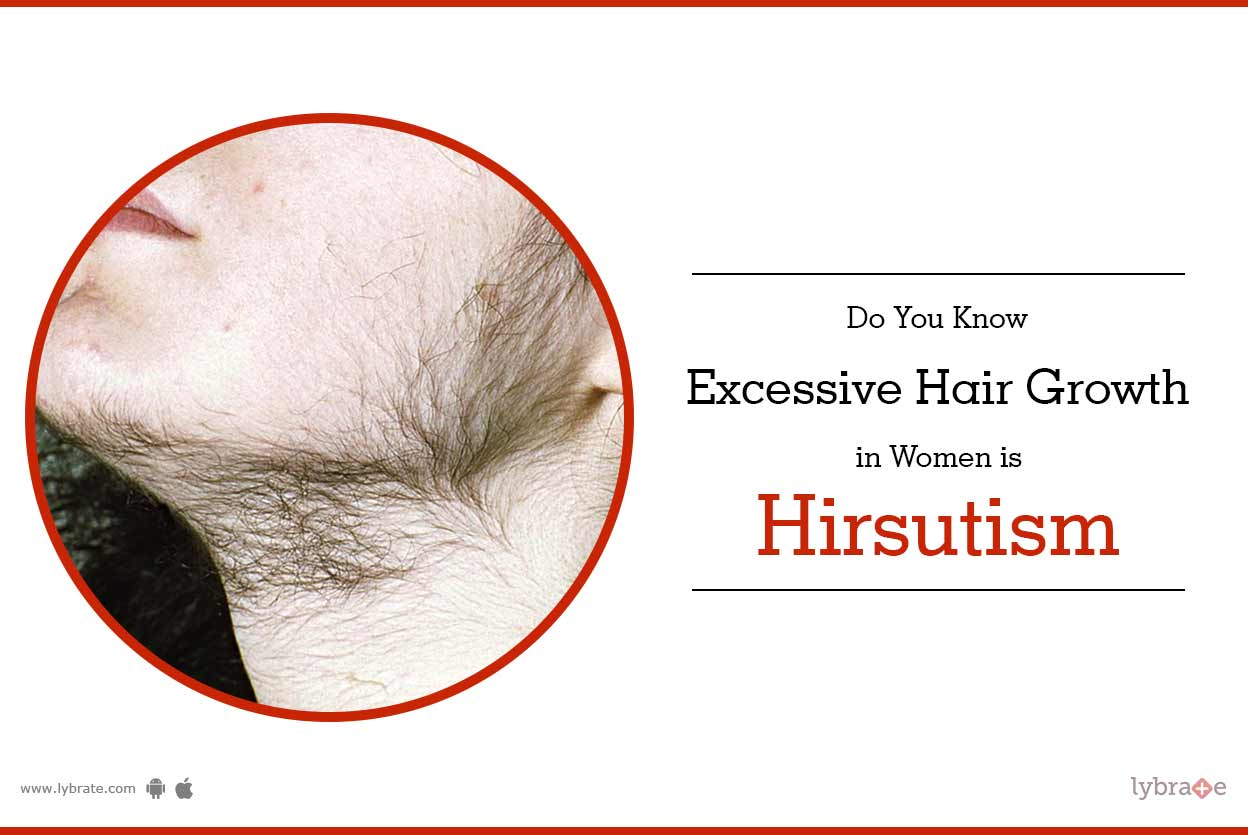 Hirsutism in women we will help you 3