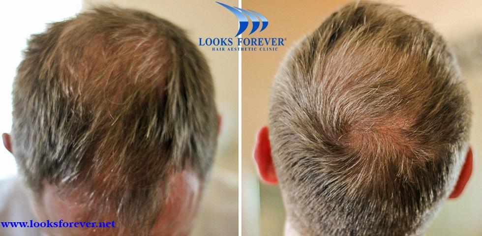Looks Forever Hair Aesthetic Clinic In Noida Lybrate