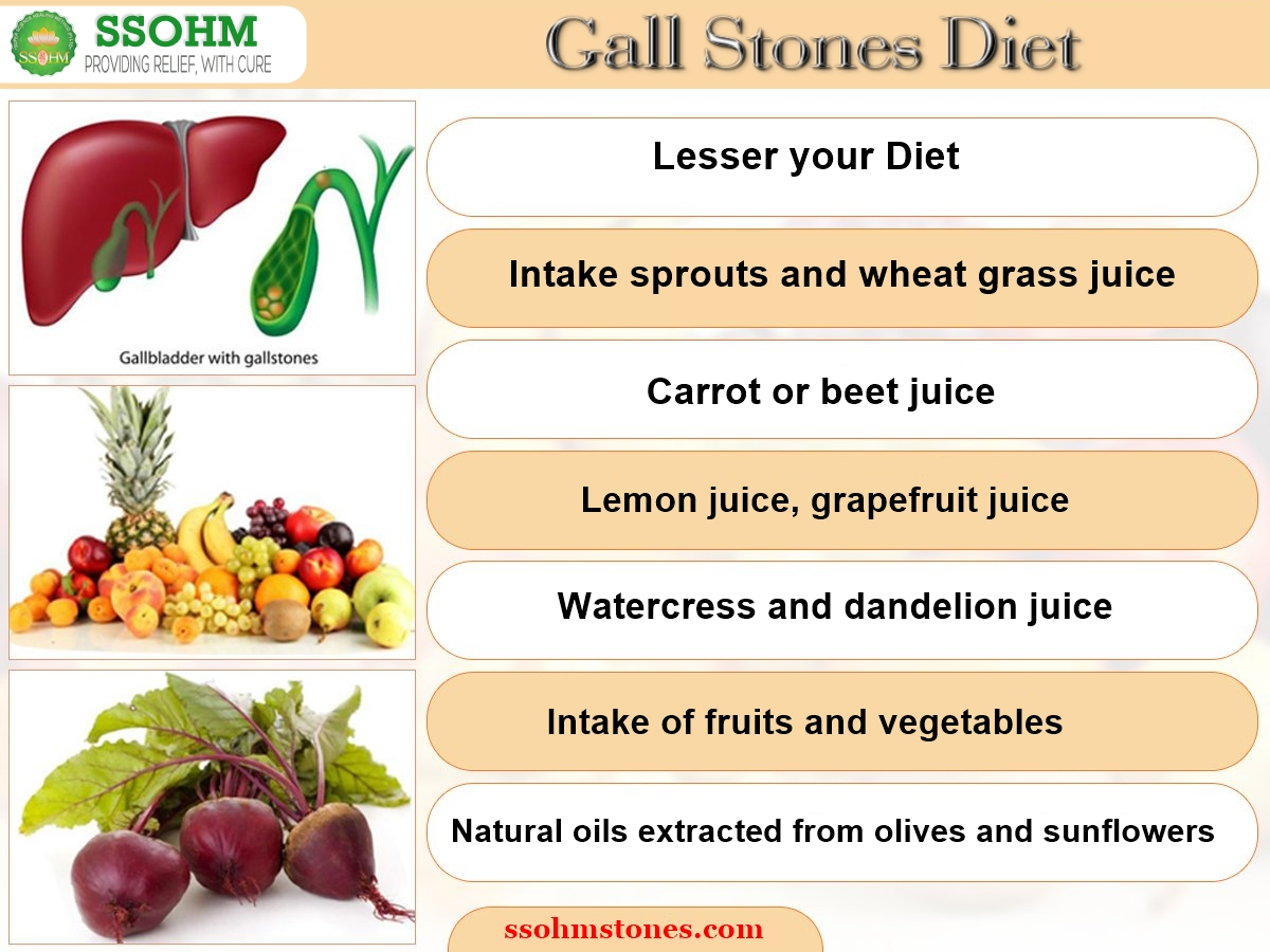 How to eat if you have gallstones