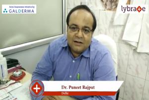 Lybrate   Dr. Puneet rajput speaks on importance of treating acne early.