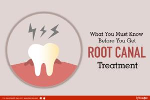 What you must know before you get root canal treatment<br/><br/>Root canal treatment also known a...
