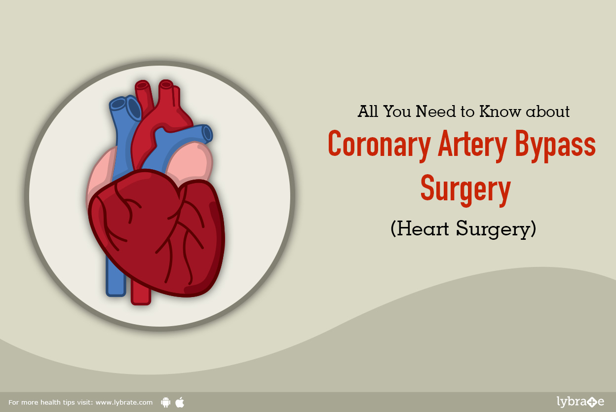 All You Need To Know About Coronary Artery Bypass Surgery (Heart ...