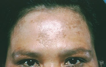Melasma Signs Causes And Treatment By Dr Venu Kumari