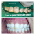32 Pearls Multispeciality Dental Clinic Image 10