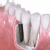 Dentex Prakriti Clinic,  | Lybrate.com