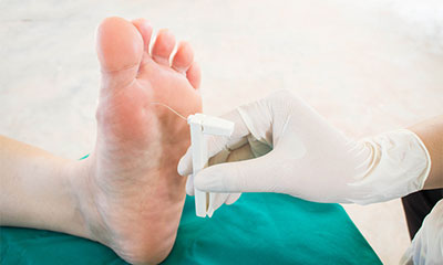 Frequently Asked Questions about Living with Neuropathy