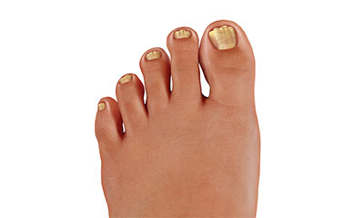 Frequently Asked Questions About Treating An Ingrown Toenail Lybrate