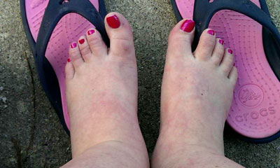 Frequently Asked Questions about Treating Swollen Feet or