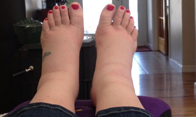 I am suffering from gout. My ankle got swelling since 1 ...